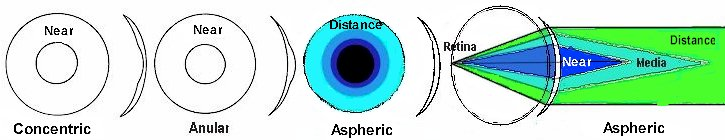 [Aspheric Multifocal]